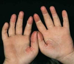 descamação nas mãos