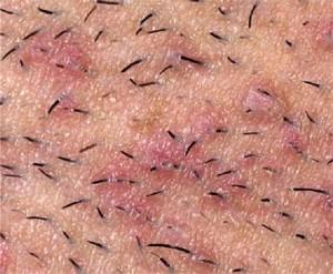 O tratamento para foliculite é realizado de maneira bem simples.