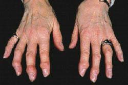 Essa doença é muito comum em mulheres com mais de 65 anos.