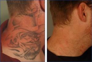 Esse método de remoção de tatuagem constitui várias espécies de laser.