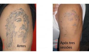 Algumas tatuagens não pode ser removidas.
